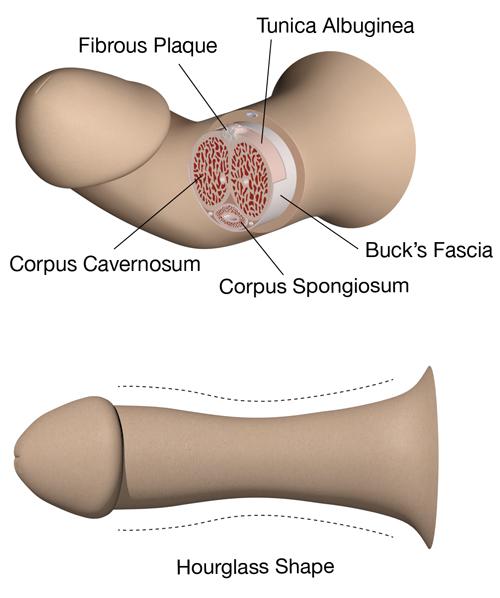 penile diseases symptoms