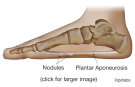 Illustration of plantar fibromatosis