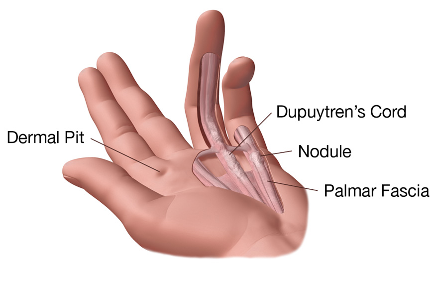 Illustration of... Fractured Wrist Treatment
